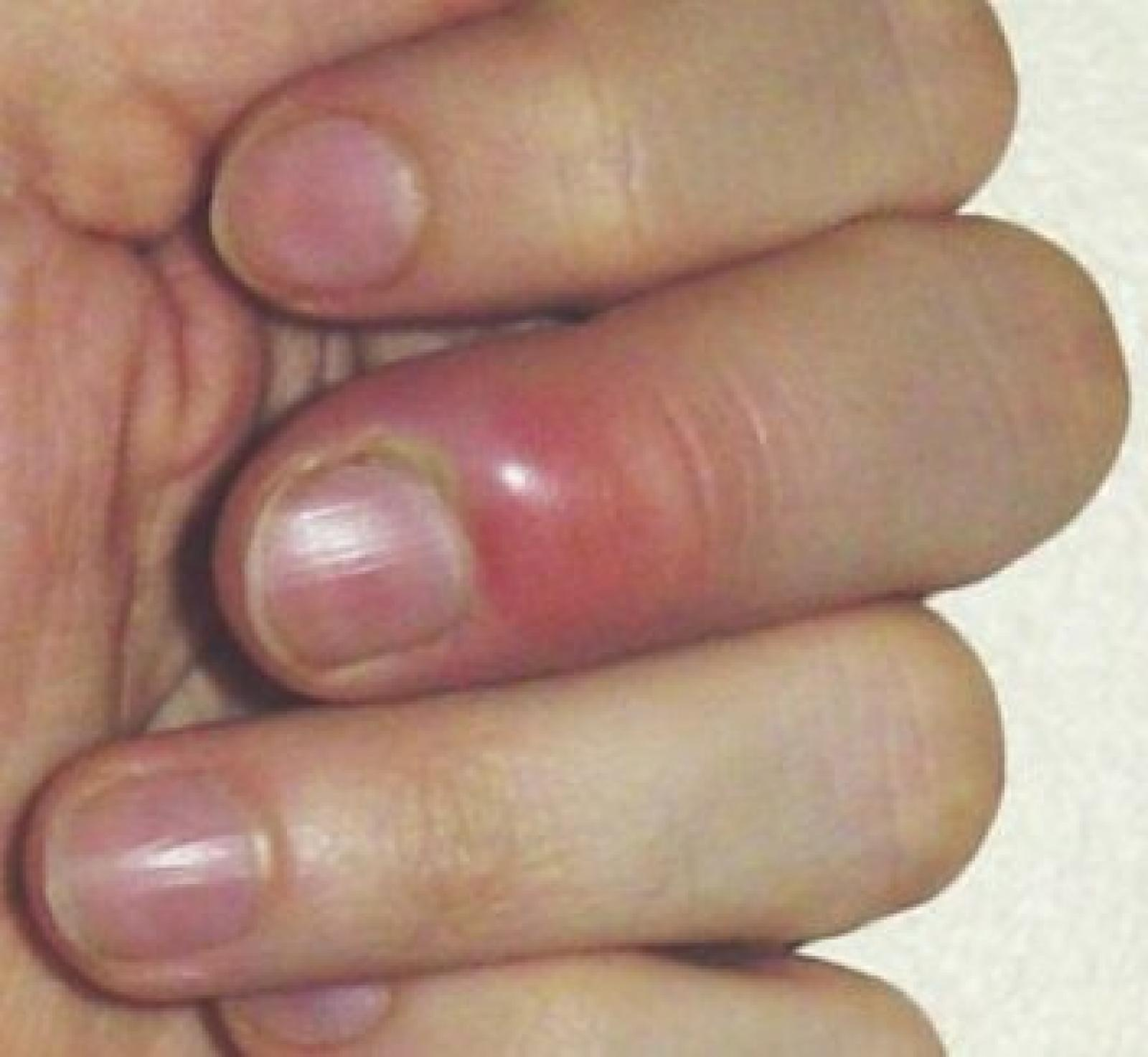 PARONYCHIA - SWELLING AROUND THE NAIL FOLD